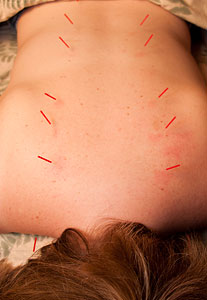 Acupuncture at A Balanced Life Health Care